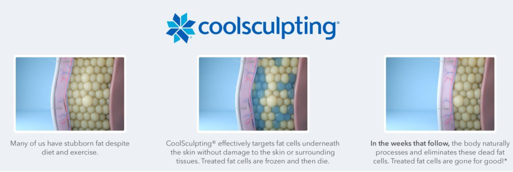 How does coolsculpting work?