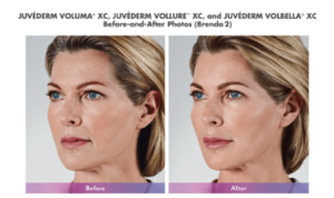 Juvederm Vollure Before & After