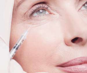 Under eye filler treatment