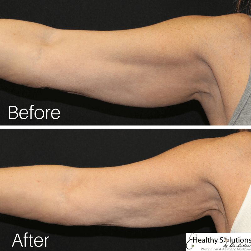 Coolculpting before and after arms